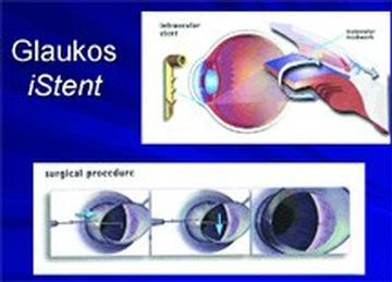 Recently Approved Cataract Treatment Exclusively Offered in Bowie, Md.